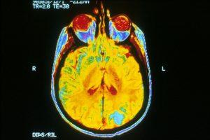 MRI Brain Scan.